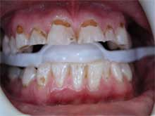 Hollywood smile in one week - Implantcenter Budapest