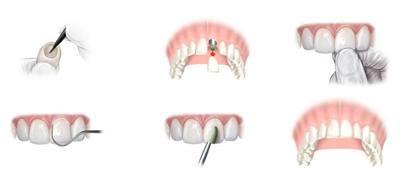 Dental implantations - Good to know - dentist abroad, Hungary, Budapest